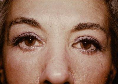 blepharoplasty-after-01