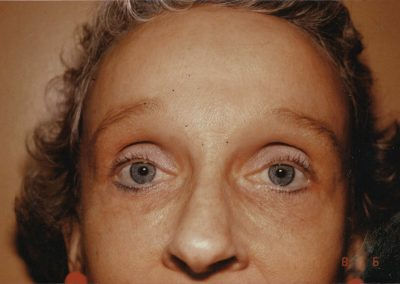 blepharoplasty-after-02