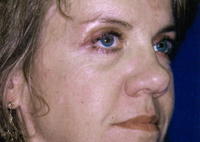 blepharoplasty-after-03