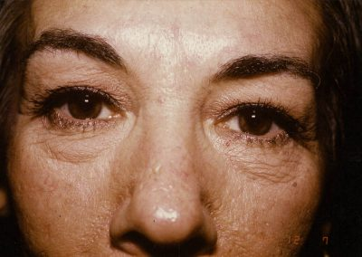 blepharoplasty-before-01