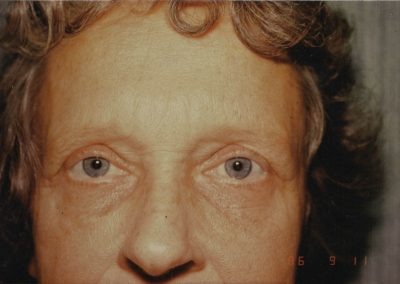 blepharoplasty-before-02