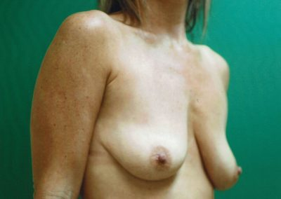 breast-augmentation-10a-before