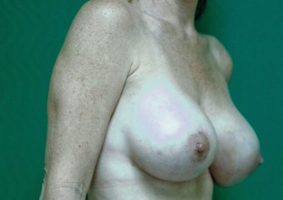 breast-augmentation-10b-after
