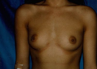 breast-augmentation-1a-before