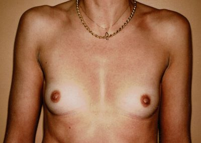 breast-augmentation-2a-before