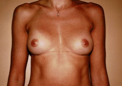 breast-augmentation-2b-after