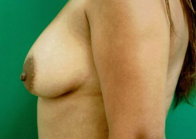 breast-augmentation-3a-before
