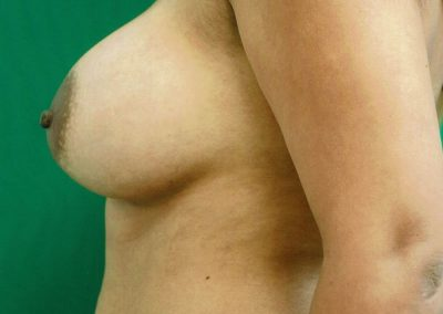 breast-augmentation-3b-after