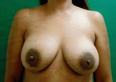 breast-augmentation-4b-after
