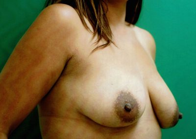 breast-augmentation-5a-before