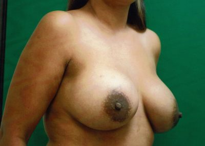 breast-augmentation-5b-after