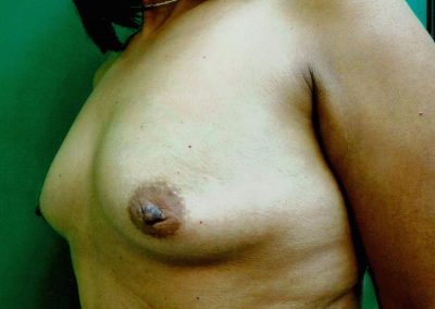 breast-augmentation-6a-before