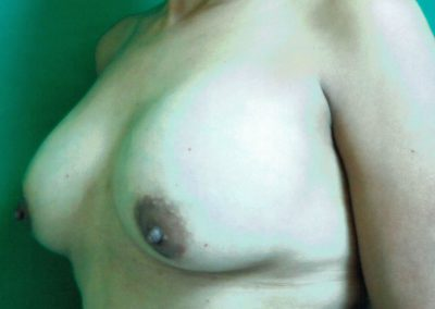 breast-augmentation-6b-after