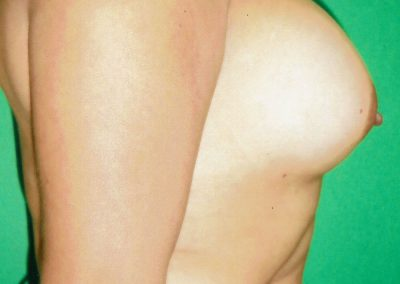 breast-augmentation-7b-after