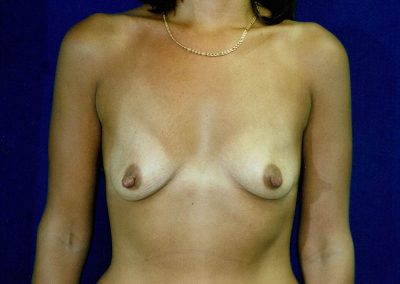breast-augmentation-8a-before