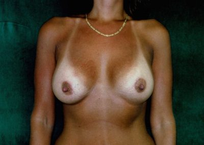 breast-augmentation-8b-after