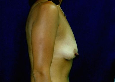 breast-augmentation-9a-before
