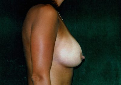 breast-augmentation-9b-after