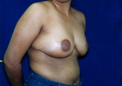 breast-lift-after-01