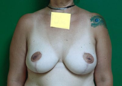 breast-lift-after-04