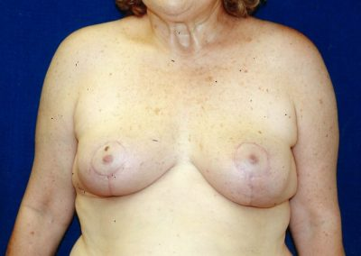 breast-lift-after-06