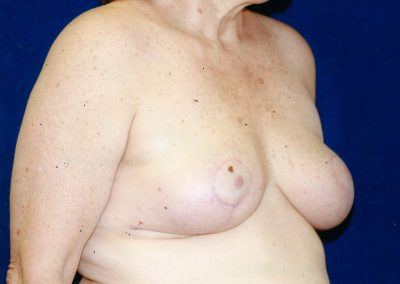 breast-lift-after-07