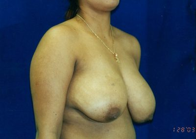 breast-lift-before-01
