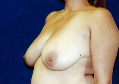breast-lift-before-02