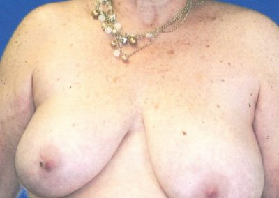 breast-lift-before-06