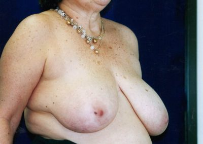 breast-lift-before-07