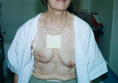 Before right mastectomy