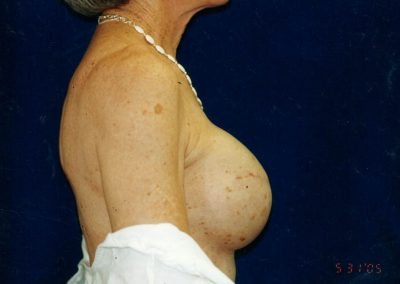 Tissue expander forming right breast reconstruction
