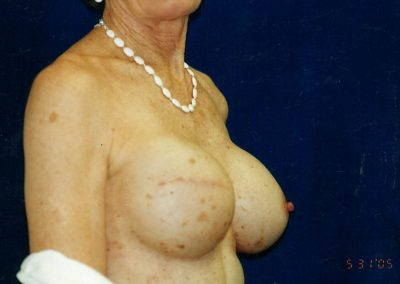 Left breast augmented with saline implant and tissue expander replaced with implant right breast
