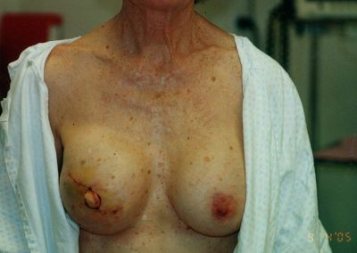 Nipple reconstruction right breast