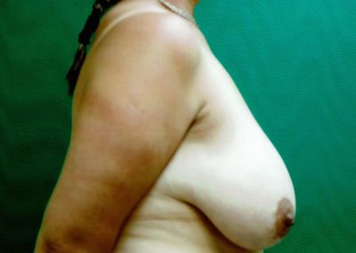 breast-reduction-10a-before