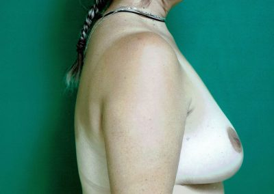 breast-reduction-10b-after
