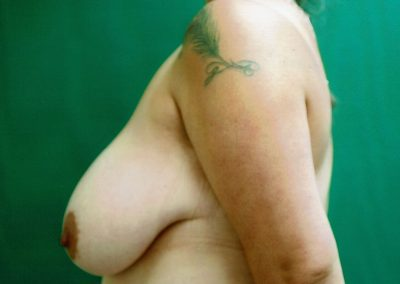 breast-reduction-1a-before