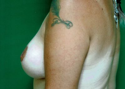 breast-reduction-1b-after
