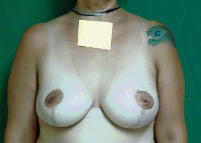 breast-reduction-2b-after