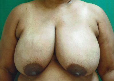 breast-reduction-8a-before