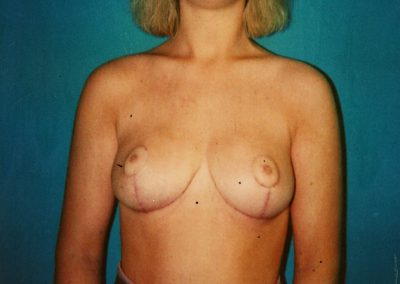 breast-reduction-after-02