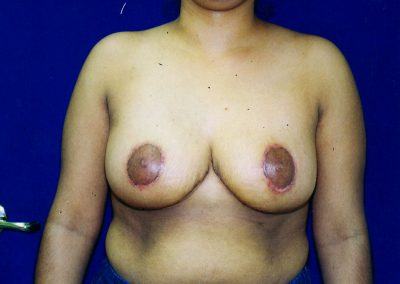 breast-reduction-after-04