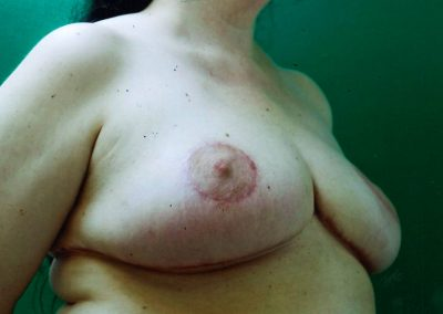 breast-reduction-after-05