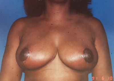 breast-reduction-after-06