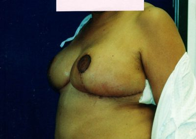 breast-reduction-after-07