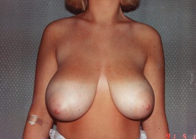 breast-reduction-before-02