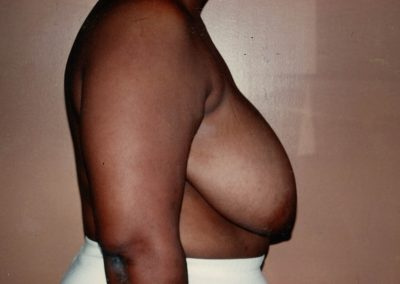 breast-reduction-before-03