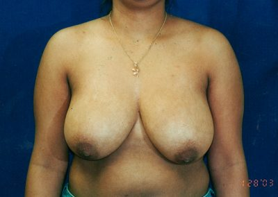 breast-reduction-before-04