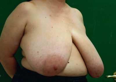 breast-reduction-before-05