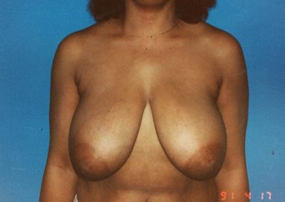 breast-reduction-before-06